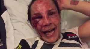 UFC Fight Night 107: Η Lansberg κέρδισε αλλά έγινε αγνώριστη από την Pudilova
