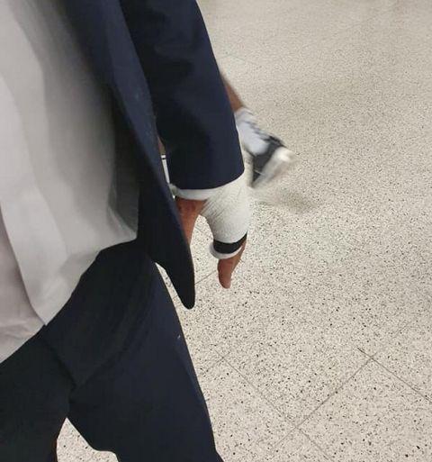 ΑΕΚ: Αυτοτραυματίστηκε στα αποδυτήρια ο Αγγέλου