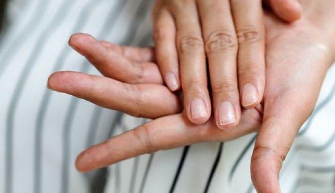 Αν τα νύχια σας γίνουν έτσι, μπορεί να είναι δείγμα κορονοϊού - Δείτε φωτογραφία